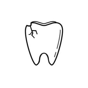 Upper Arlington OH Dentist | I Chipped a Tooth! What Can I Do?
